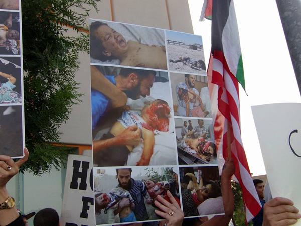 Pictures of wounded children displayed at anti-Israel (not 'pro-Gaza') rally in Fresno, 8/8/2014